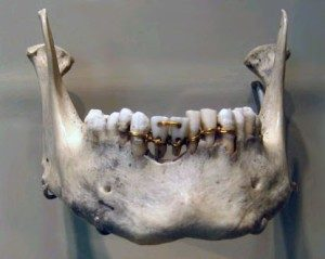 egyptian braces